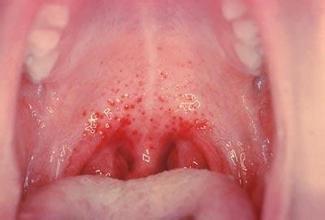 认识扁桃体炎的症状 对症治疗是关键